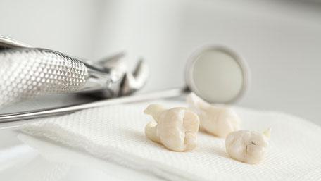筑紫野市にある歯 安田歯科・矯正歯科医院は地域密着型の歯科医院を目指しております。