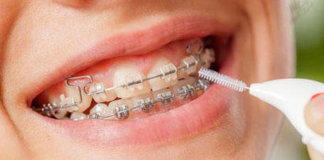 Zahnspangen Prophylaxe