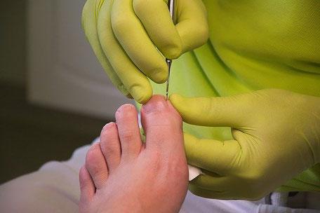Fußpflegerin behandelt einen eingewachsenen Nagel bei Pie Sano in Wiesbaden
