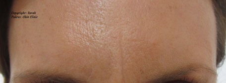 Neath botox clinic - forehead wrinkles after botox