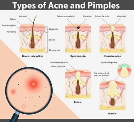 La ghiandola sebacea e le sue alterazioni: brufoli e acne
