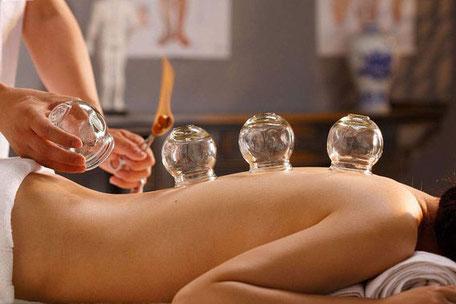 Schröpfen Aarau, BauchWohl Praxis für ein gutes Bauchgefühl, Angela Jordan