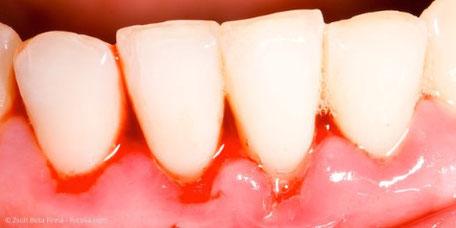 Blutendes Zahnfleisch kann ein erstes Anzeichen für Parodontitis sein.