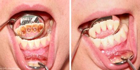 Entfernung harter und weicher Beläge bei der Professionellen Zahnreinigung (PZR)