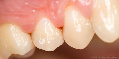 Entzündetes Zahnfleisch kann Folgen für Ihr Baby haben.