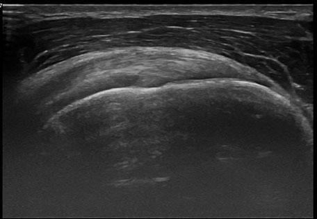 Muskuloskelettaler Ultraschall der Supraspinatus Sehne