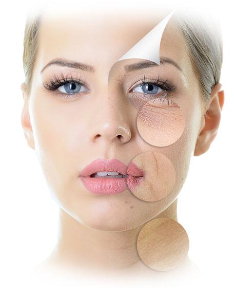 Frau AntiAging Behandlung mit vorher Effekt