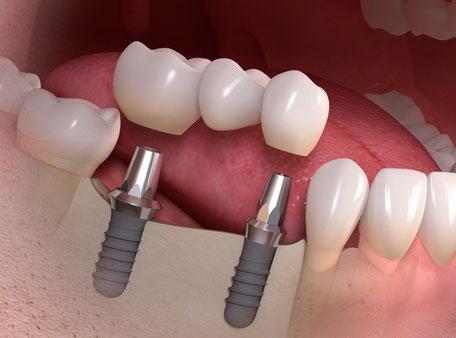 Implantate im Mund für eine Brückenversorgung