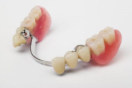 Ersatz von mehreren Zähnen als herausnehmbarer Teilersatz