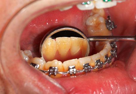 Wenn die häusliche Mundhygiene erschwert ist, ist die Professionelle Zahnreinigung besonders empfehlenswert.