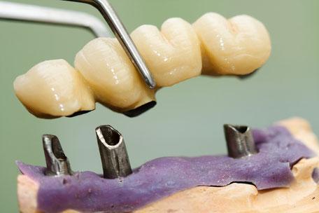 Können keine Kronen oder Brücken mehr eingepasst werden, besteht die Möglichkeit der Prothetik auf Implantaten
