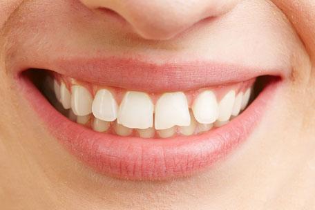 Mit Veneers können leichte Schäden an den Zähnen einfach korrigiert werden.
