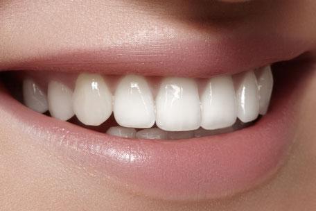 Freuen Sie sich über schöne weiße Zähne bereits nach 2 Wochen