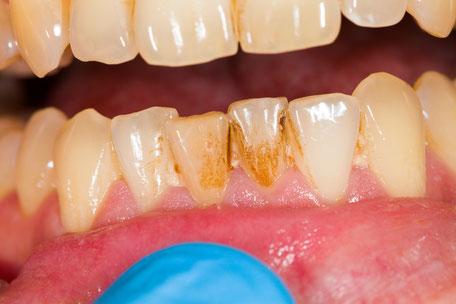 Unschöne Beläge von Kaffee, Tee oder dem Rauchen werden bei der Professionellen Zahnreinigung entfernt.