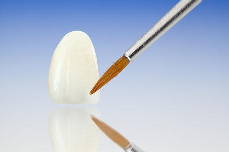 Farbe und Form der Veneers werden optimal auf die eigenen Zähne angepasst