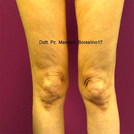 lifting del ginocchio con fili in pdo: prima
