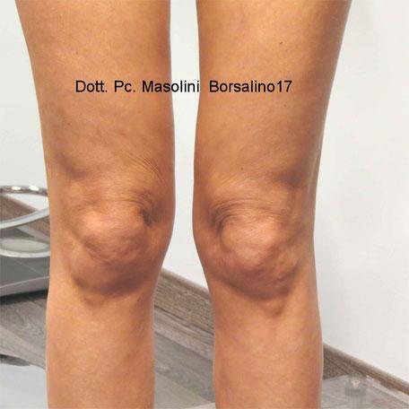 lifting del ginocchio con fili in pdo: dopo