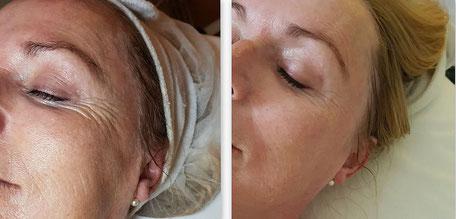 Vorher / Nachher Effekt mit bdr Micro-Needling Anti-Aging Behandlung