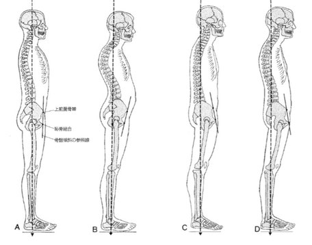 ケンダルの姿勢分類