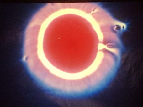 Holistische Lichttherapie HLT, Praxis für Kinesiologie & Komplementärtherapie in Meisterschwanden, Seetal