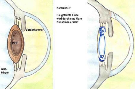 Bild: Katarakt als Trübung der Linse.  Durch die Katarakt-Operation erfolgt die Entfernung der getrübten Linse und die Implantation einer klaren Kunstlinse.