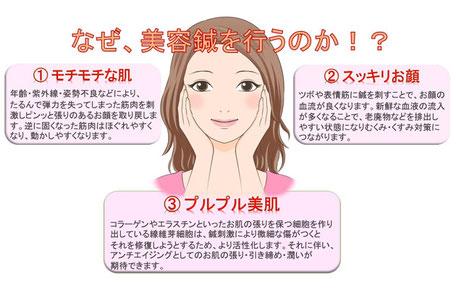 美容鍼を受ける目的