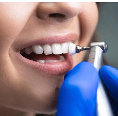 Junge Frau bei der medizinischen Zahnreinigung