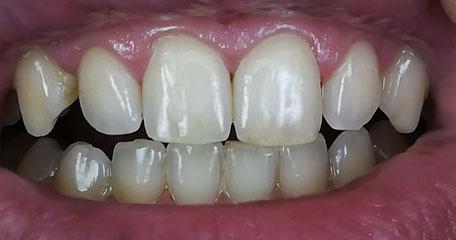 Zahnveneer