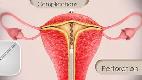 Perforation (Durchstoßen) der Gebärmutter durch eine T-Spirale (schematische Darstellung)