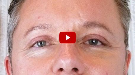 Joel Time: Tarte Shape Tape Concealer Test / Fazit Lidstraffung