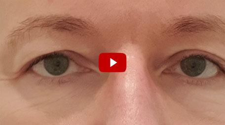 Joel Time: Lidstraffung / Augenlifting eines Schlupflids - Erfahrungsbericht...