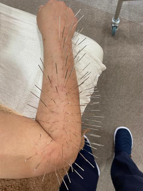 原因不明のテニス肘にルート治療