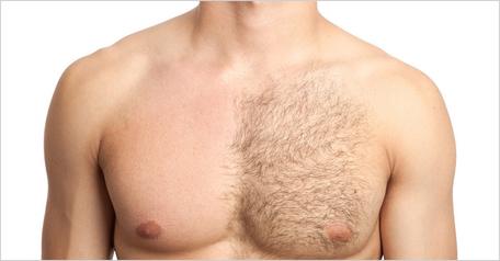 Haarentfernung am Körper mit Wachs oder IPL