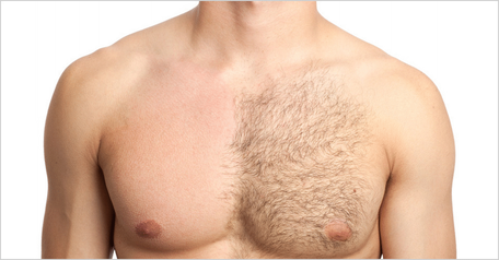 Haarentfernung am Körper mit Wachs oder MPL 4G