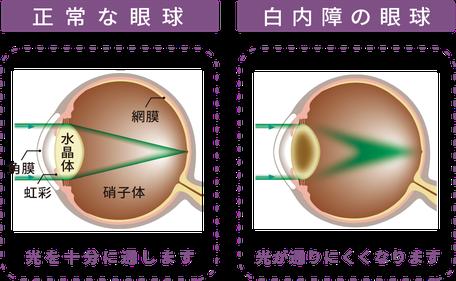 正常な眼 白内障の眼