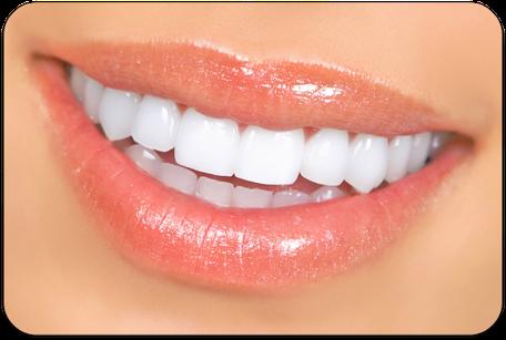 Anziehend weiße Zähne mit Bleaching (© Kurhan - Fotolia.com)