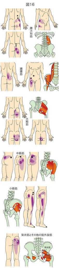 体幹下部の痛みをもたらすトリガーポイント