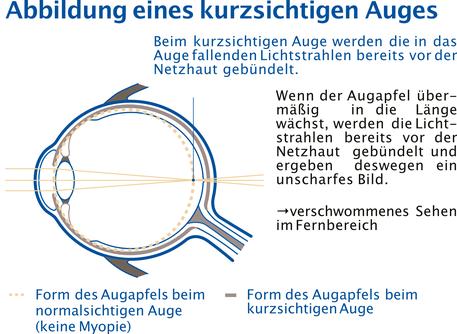 Abbildung eines kurzsichtigen Auges