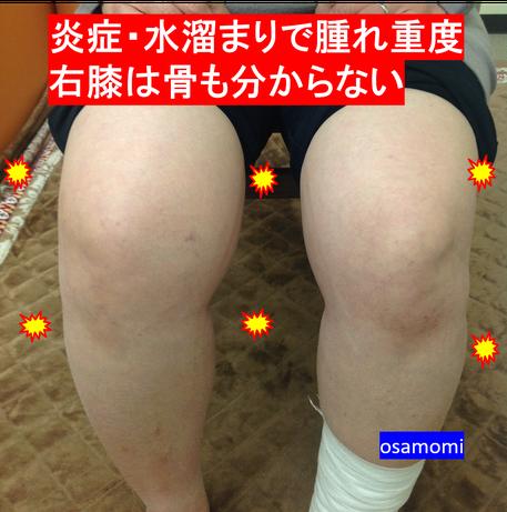 膝痛(変形性膝関節症)は、昭島市のオサモミ整体院。拝島駅から無料送迎サービス。