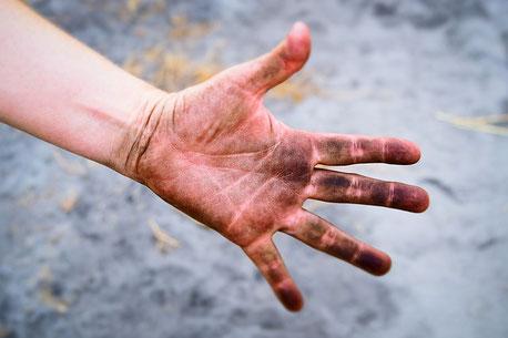 手を汚して人助け 紺堂はりきゅう
