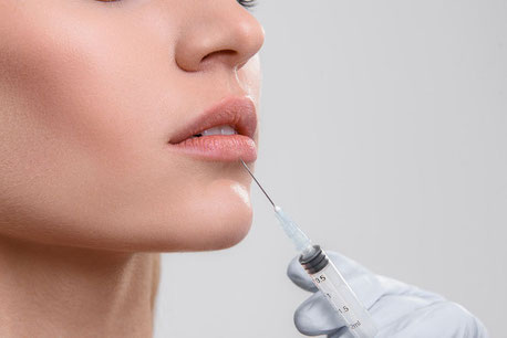Lippenunterspritzung mit Hyaluronsäure in Hamburg
