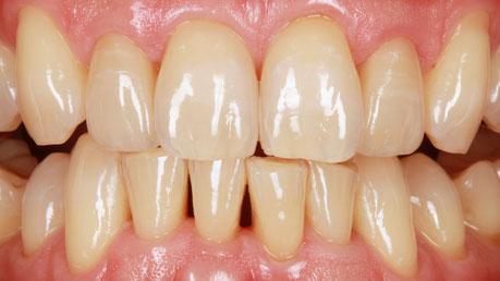 Zahnfehlstellung Korrektur mit Veneers / Bild Markus Bongartz