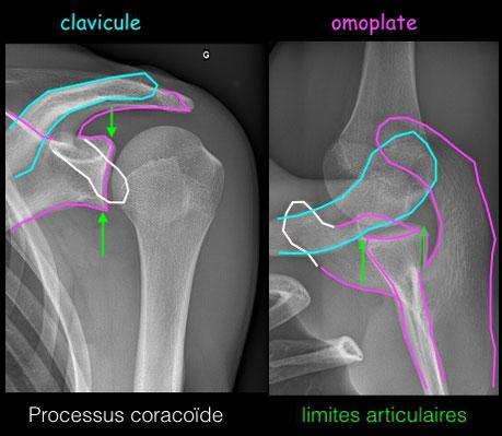 luxacion del hombro. Dr Julien Rémi cirugia ortopedica Toulouse Croix du Sud