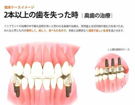 奥歯のインプラント 永井歯科医院 茨木市