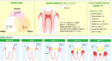 歯周病治療 永井歯科医院 茨木市