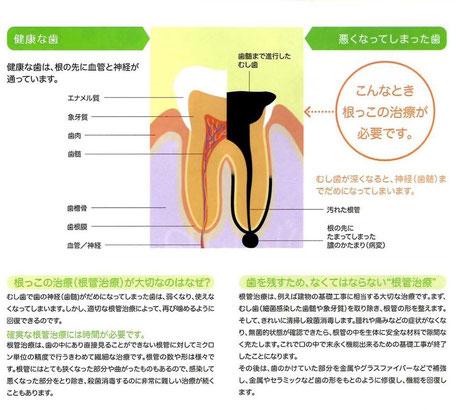 歯根治療 永井歯科医院 茨木市