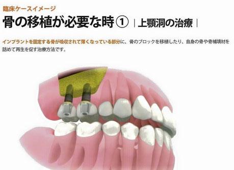 サイナスリフト ソケットリフト 永井歯科医院 茨木市 診療科目