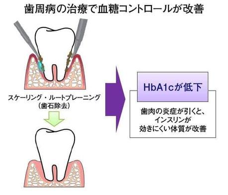 糖尿病治療 茨木市 永井歯科医院
