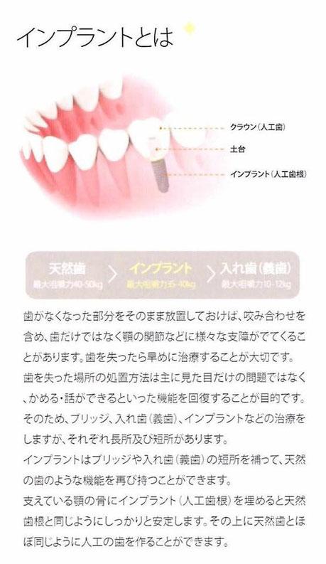 インプラント 茨木市 永井歯科医院 説明