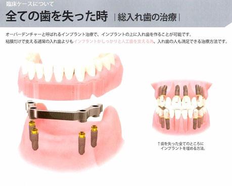 総入れ歯 インプラントオーバーデンチャー 茨木市 永井歯科医院